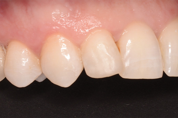 tooth repaired after bonded filling