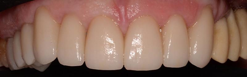healthy teeth after dental crowns