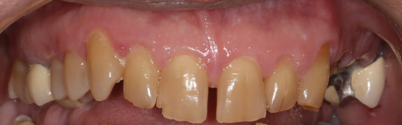 crooked, misaligned teeth before treatment