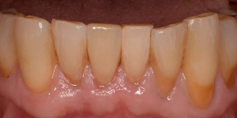 exposed dentin and recessed gums