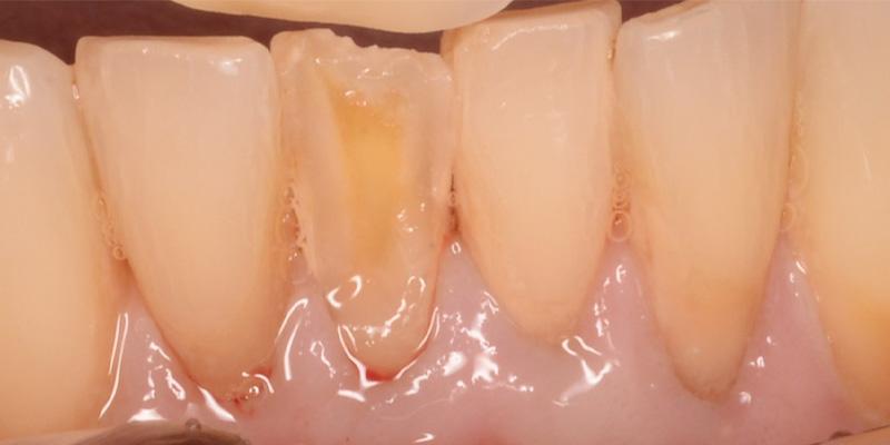 exposed dentin on lower teeth