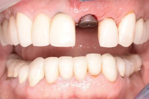 dental implant for missing front tooth
