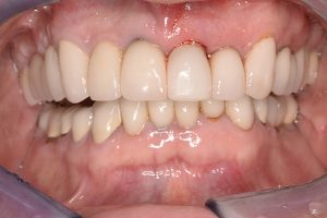 missing front incisor replaced with implant