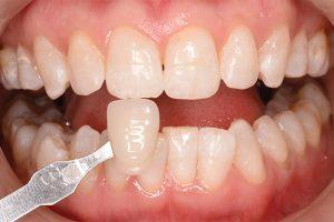 teeth whitening case 1082