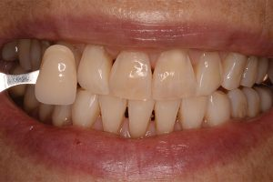 whiter teeth after treatment