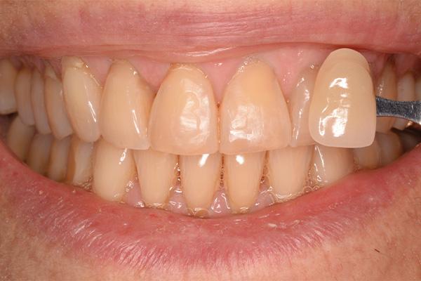 whitening for yellow teeth