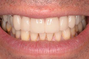 veneers on upper teeth row
