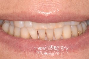 uneven, yellow teeth before veneers