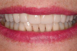 patient smile after veneers