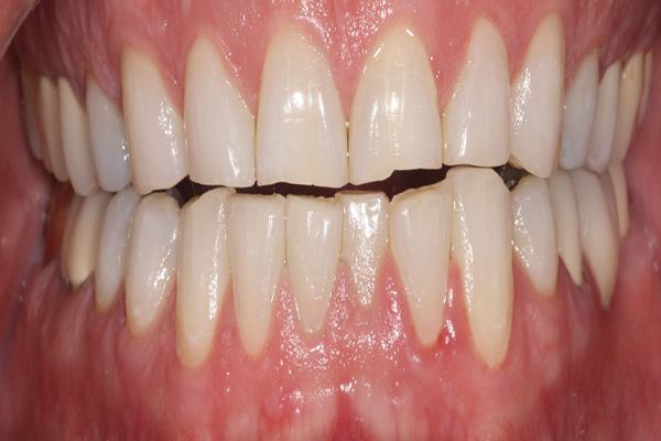 gaps between upper and lower teeth before veneers
