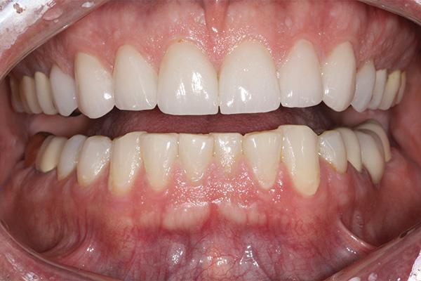 aligned teeth after veneers