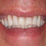 sharp, uneven teeth before veneers