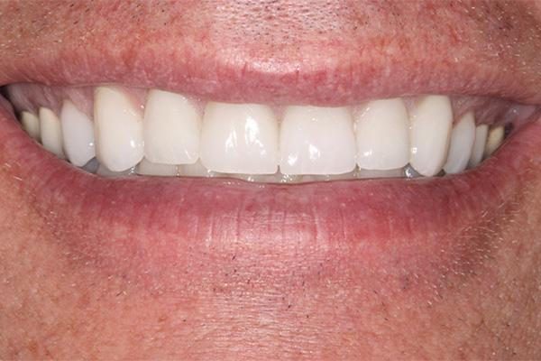 even upper front teeth after veneers