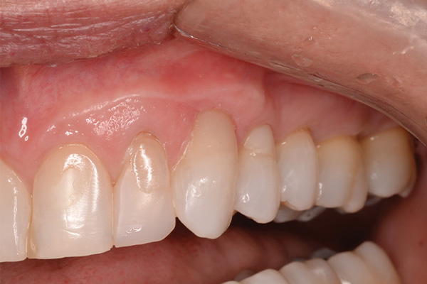 bonded filling restores tooth