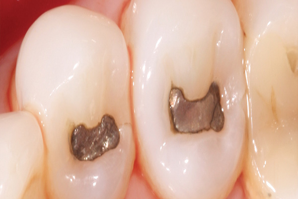 amalgam fillings before replacement with bonded fillings