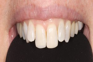 after bonded fillings on upper front teeth