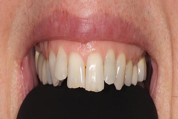 uneven teeth before bonded fillings
