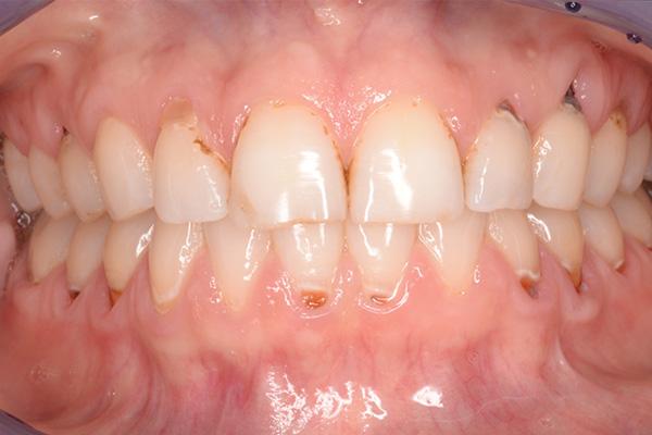 before dental bonded fillings