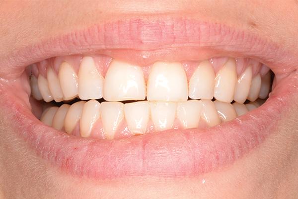 after dental bonded fillings
