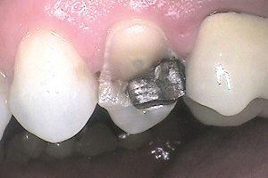 before dental crown