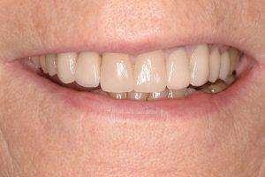 white, shining teeth after veneers