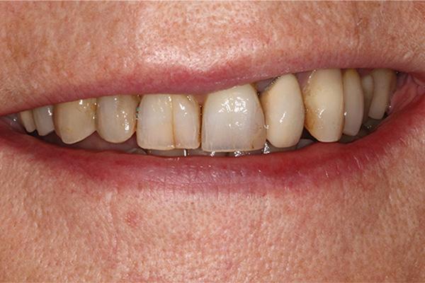 dark, stained teeth before veneers